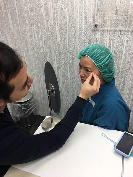 歐式雙眼皮手術前模擬雙眼皮高度