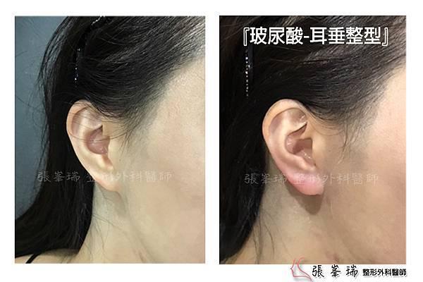 張峯瑞整型外科-耳垂整型-BA-201708.jpg