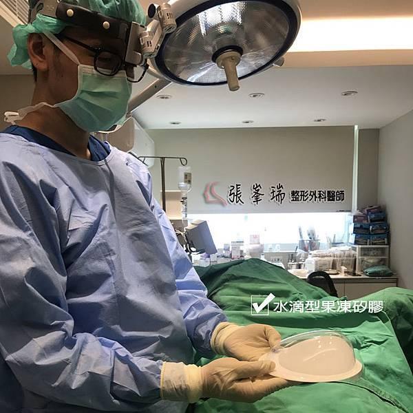 張峯瑞整形外科醫師-隆乳-1.jpg