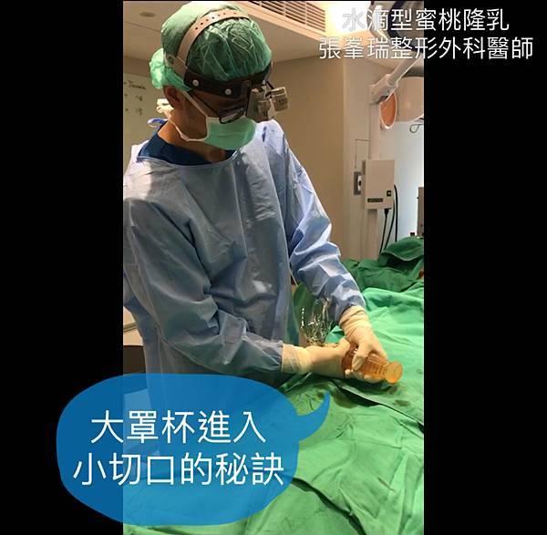 張峯瑞整形外科醫師-推乳袋-6.jpg
