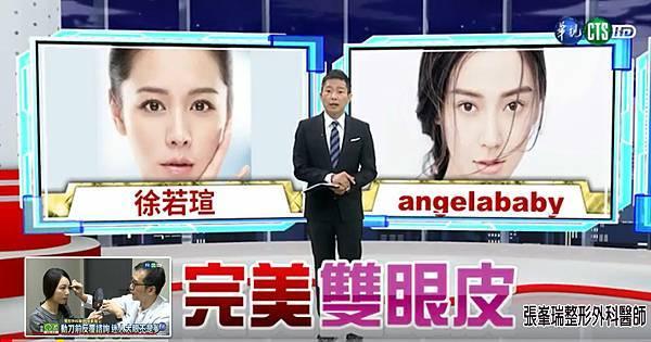 張峯瑞整形外科醫師_華視採訪_完美雙眼皮_20170905-4.jpg