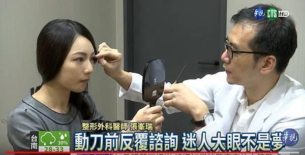 張峯瑞整形外科醫師_華視採訪_完美雙眼皮_20170905-1.jpg