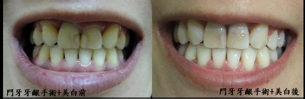 teeth white.png