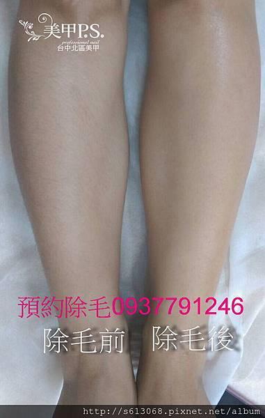 熱臘除毛比較-小腿2