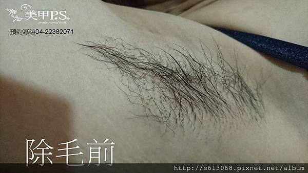腋下除毛前