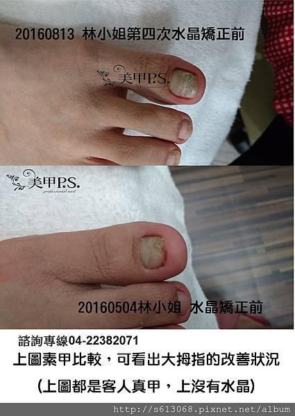 指甲矯正前後素甲比較.jpg
