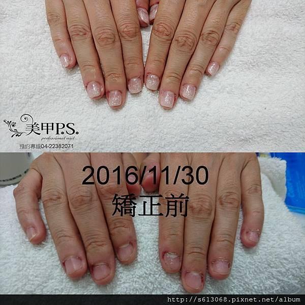 手 咬指甲矯正