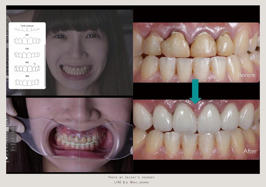 悅庭牙醫 05.png