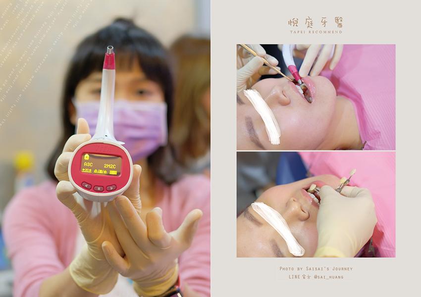 悅庭牙醫 08.png