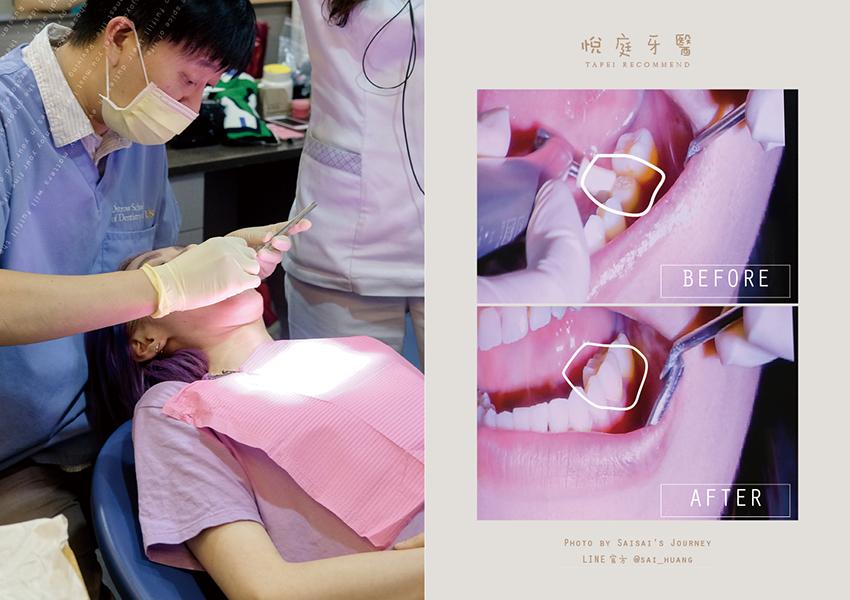 悅庭牙醫 20.png