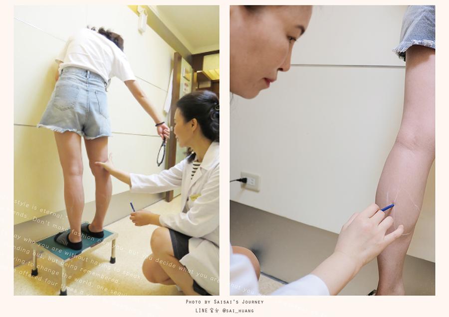麗晶診所肉毒桿菌瘦小腿肌 05.png