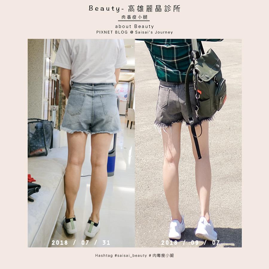 麗晶診所肉毒桿菌瘦小腿肌 01.png