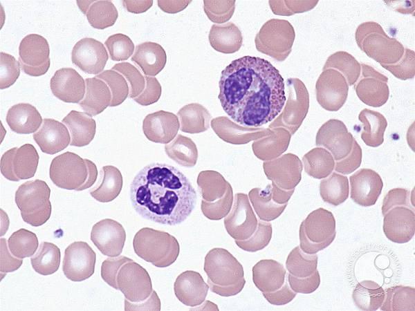 Neutrophil x Eosinophil.jfif