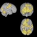 左側圖像顯示的是集中冥想的大腦,而右側顯示的非指導禪修的大腦