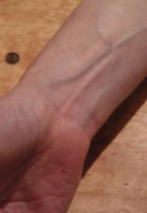 皮膚燒傷 4.jpg