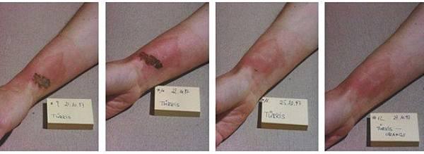 皮膚燒傷 3.jpg