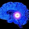 大腦松果體 1.JPG