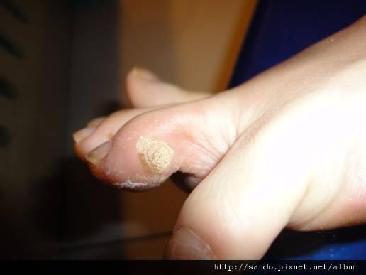 2011年12月18日開始抹青草膏,之前冷凍治療3個月