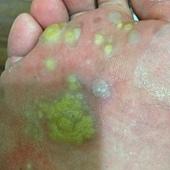 1.未擦藥前使用冷凍治療,起水泡,走路很痛.JPG