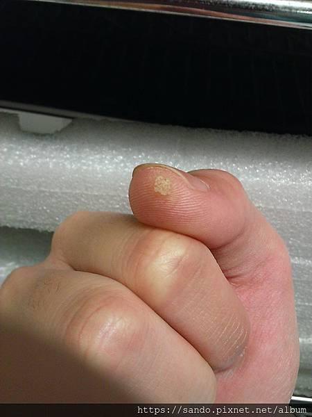 2019-12-16手拇指病毒6.jpg