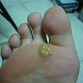 10幾年的尋常疣*魚鱗贅*足底疣*.......冷凍治療後皮膚腫脹疼痛..腳底明顯的看到6顆疣..無法走路..