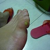第一次冷凍疼痛腫脹的小拇指~*足底疣*