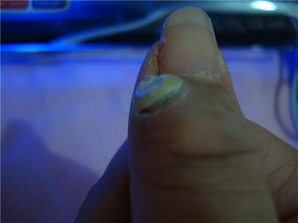 一顆4-5年的疣長在指甲縫旁只要不小心碰到還蠻痛的~一天塗抹好多次.已經有要脫落的感覺..