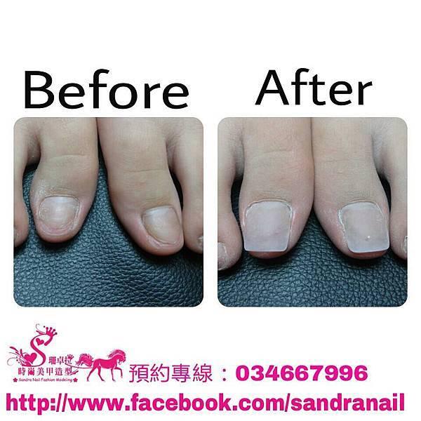 腳指甲的修剪