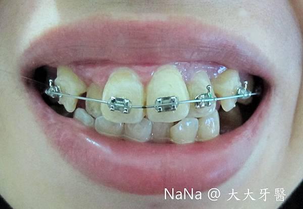 2012/6/14 上排牙齒-上矯正器線第一天