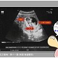 【孕事】♥ 懷孕十月 ♥ 第十一週 換到 桃園-敏盛
