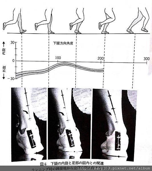 orthosed foot (1)-170000