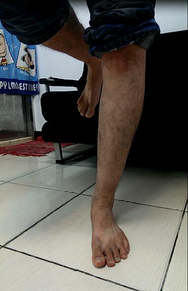 one leg standing test