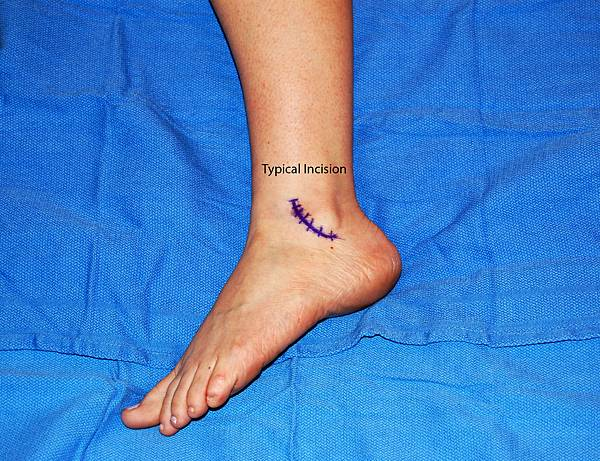 Image_Hayes_Lateral_Ankle_Incision