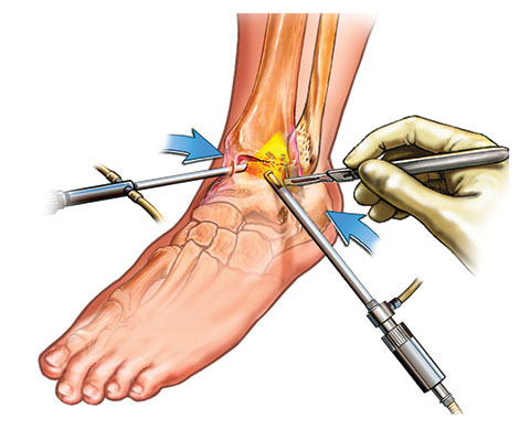 OS34-Arthroscopy-Ankle