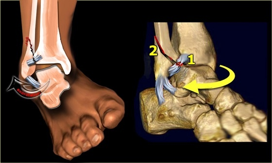 Avulsion fracture ankle