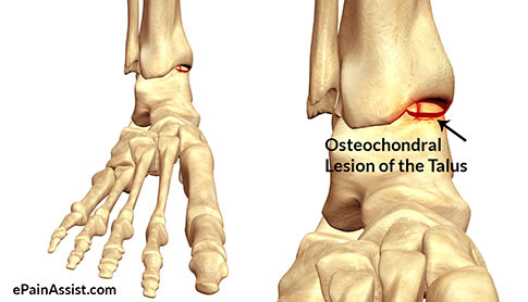 Osteochondral-Lesion-of-the-Talus-inner-image