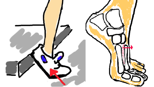 lisfranc+fracture+metatarsal+broken+foot+diagnosis -1.png