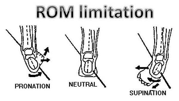 STJ limitation.jpg