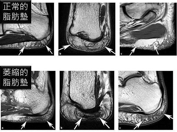 脂肪墊 MRI.jpg