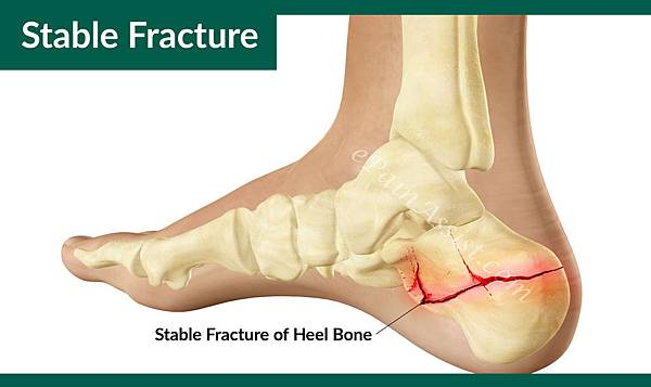Stable-Fracture-of-Heel-Bone-1.jpg