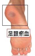 足跟瘀血.jpg