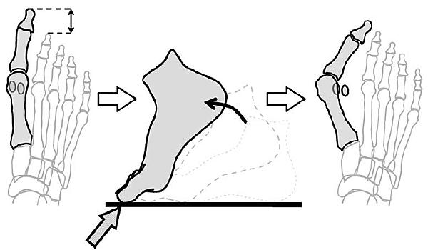 較長的大姆趾2  (Munuera, Polo, %26; Rebollo, 2008).PNG