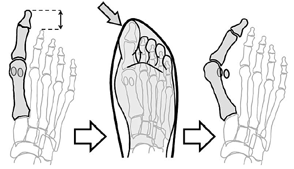 較長的大姆趾  (Munuera, Polo, %26; Rebollo, 2008).PNG