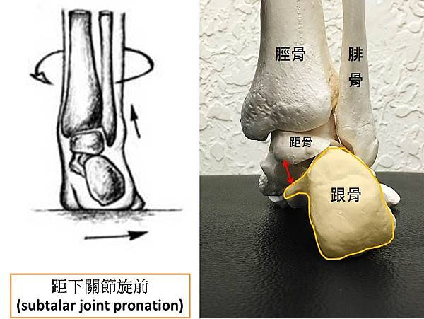 pronated foot2.jpg