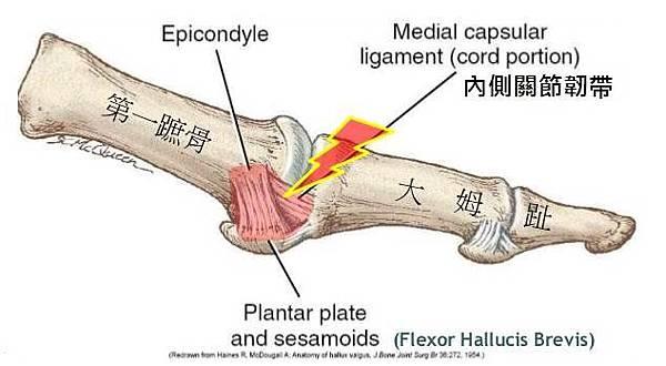 1 MTP ligament.jpg