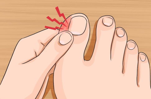 ingrown-toenail.png
