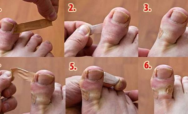 How-To-Heal-Ingrown-Toenail-At-Home-ml7j5p6c9fnez7fvold9ihxapxuight9vdfk2ghcis.jpg