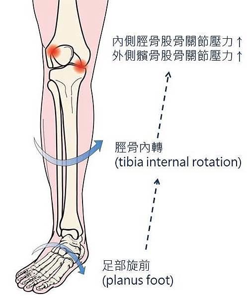 足旋前與膝關節損傷.jpg
