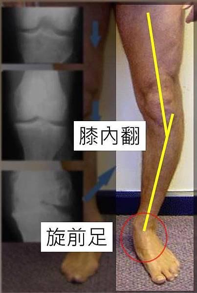 foot planus and knee varum 1.jpg