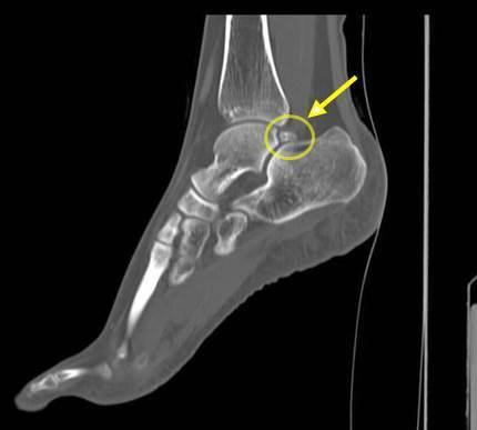 os-trigonum CT.jpg